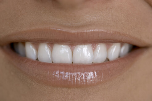 Woman\\\'s toothy smile, close up - OWF00811