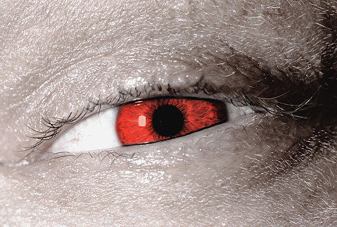 Red eye of mature man - HST000020