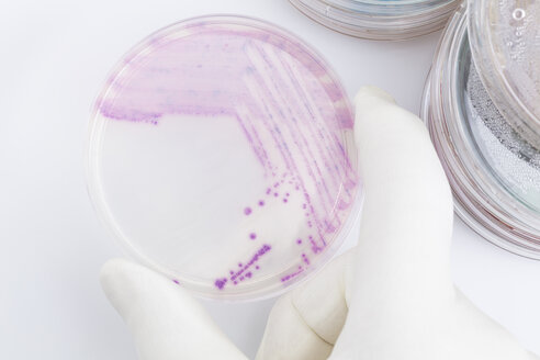Human hand holding petri dish with bacteria, close up - DRF000003
