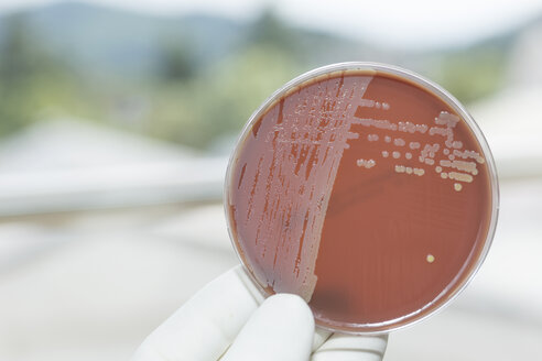 Germany, Freiburg, Human hand holding petri dish with bacteria, close up - DRF000010