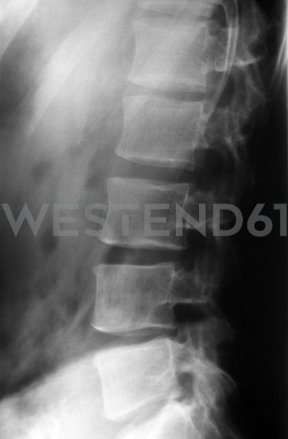 Radiograph of lumbar spine - JM000269