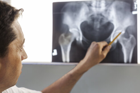Doctor pointing at x-ray of a pelvis - BZF000094