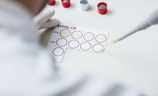 Analysing of blood sample - DISF001651