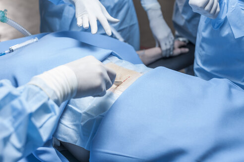 Surgical team operating patient - ZEF007371