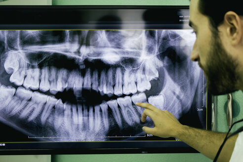 Dentist showing an x-ray - ABZF000135