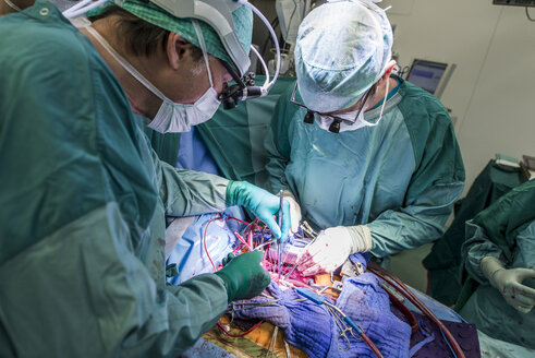 Heart surgeons during a heart valve operation - MWEF000076