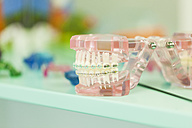 Tooth model with braces - ZEDF000229
