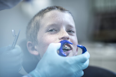 Boy in dental surgery receiving orthodontic treatment - ZEF10629