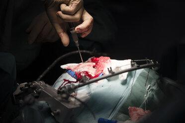 Neurosurgeon screwing the cranial bone during an operation - MWEF00135
