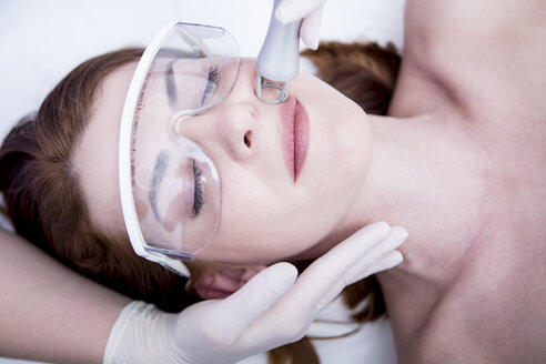 Aesthetic surgery, CO2 laser resurfacing - WESTF22953