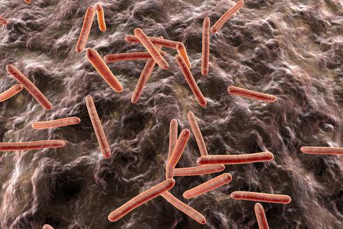 Tuberculosis bacteria in an organism, 3D Rendering - SPCF00150