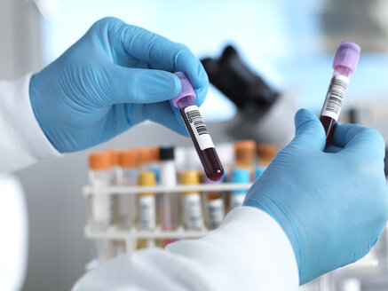 Hand holding blood sample in laboratory - ABRF00022