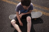 High angle view of boy with wounded knee sitting on skateboard - CAVF09882