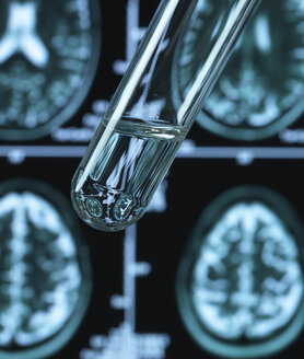 Pharmaceutical research into brain disorders including dementia and alzheimer's - ABRF00364