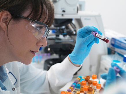 Female scientist examining blood sample ready for testing  in laboratory - ISF21353