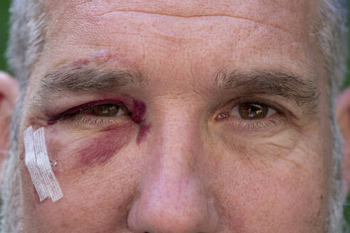Close-up of man with black eye - LBF02763