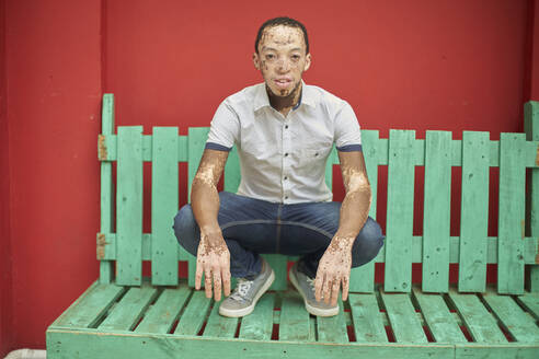 Young man with vitiligo on a green bench in front of a red wall - VEGF01357