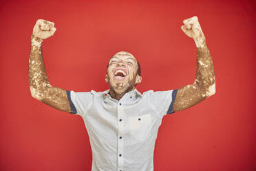 Young man with vitiligo screaming with joy and laughing on a red wall - VEGF01360