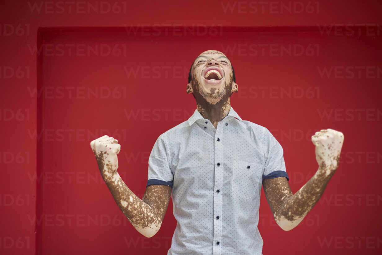 Young man with vitiligo screaming with joy and laughing on a red wall - VEGF01363 - Veam/Westend61