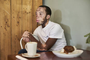 Young man with vitiligo sitting in a cafeteria with a coffee and a muffin on the table - VEGF01369