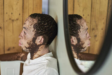 Young man with vitiligo and his reflection in the mirror - VEGF01375
