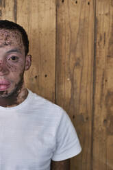 Half portrait of a young man with vitiligo in front of a wooden wall - VEGF01378