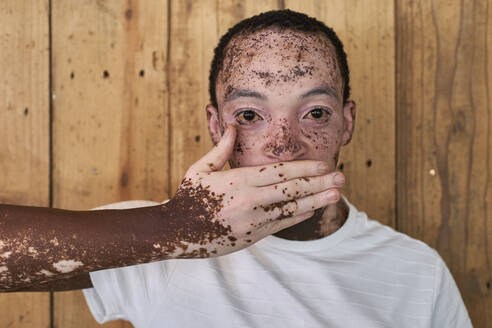 Young man with vitiligo covering his mouth with his hand - VEGF01381