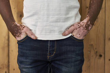 Close-up of the body of a man with vitiligo on a wooden wall - VEGF01384