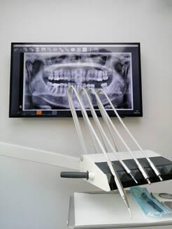 Deutschland, Nordrhein-Westfalen, Korschenbroich, Röntgenbild auf Monitor bei Zahnarzt - CHPF00598