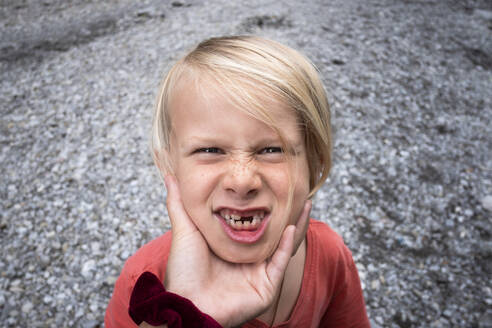 Boy with a missing front tooth, making faces at person squeezing his face - CUF54800