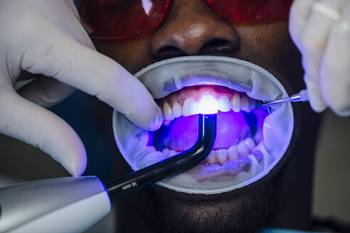 Close-up of patient getting dental teeth whitening treatment - JCMF00420