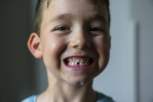 Portrait of little boy showing his tooth gap - MGIF00907