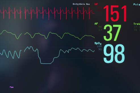 Close-upof EKG screen display - SKAF00138